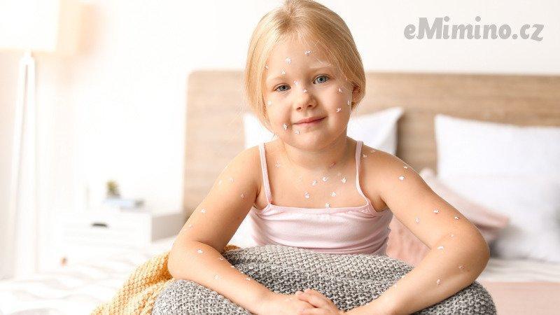 Neštovice se nejvíce šíří v dětském kolektivu. Zdroj: Canva